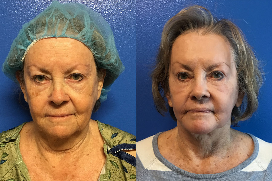 BA-FACE.NECK-WITH-RENUVION-RESURFACING-AFTER