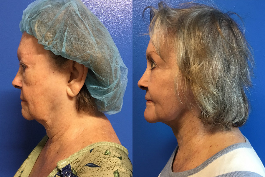 BA-FACE.NECK-WITH-RENUVION-RESURFACING-SIDE-BEFORE
