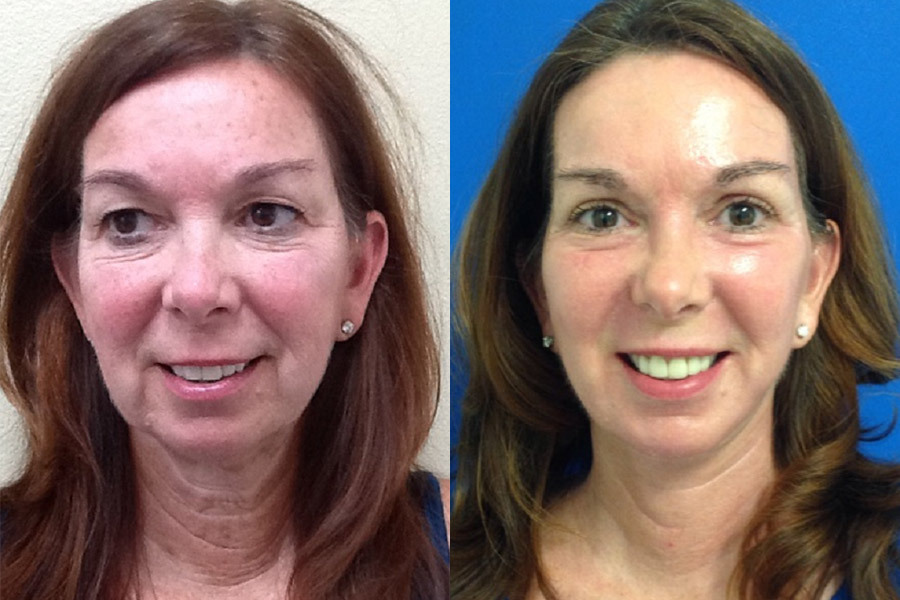 FULL-FACE-LIFT-CO2-RESURFACING-WITH-FAT-GRAFTING-PT-1-PH-1