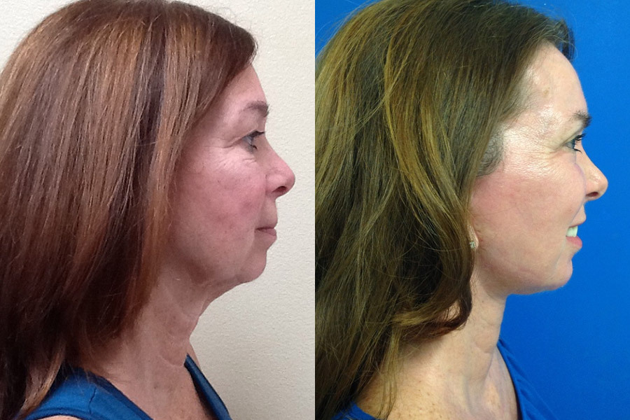 FULL-FACE-LIFT-CO2-RESURFACING-WITH-FAT-GRAFTING-PT-1-PH-2