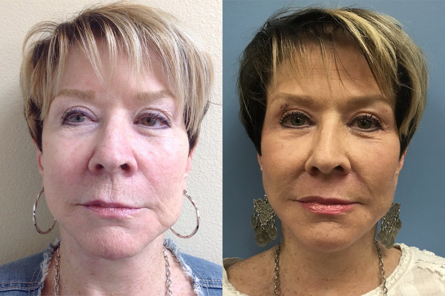 LM-JPLASTY-FACE-AND-NECK-WITH-RESURFACING-PERIORBITAL-AND-PERIORAL-AFTER-1