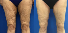 ls-thighs