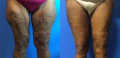 rt-thighs